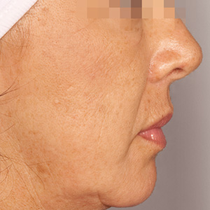 Green Peel pigmentation after