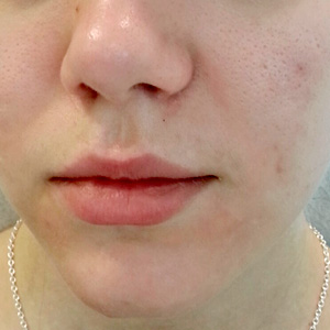 Green Peel acne after