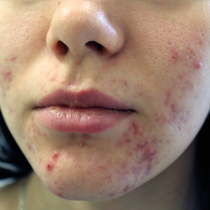 Green Peel acne before