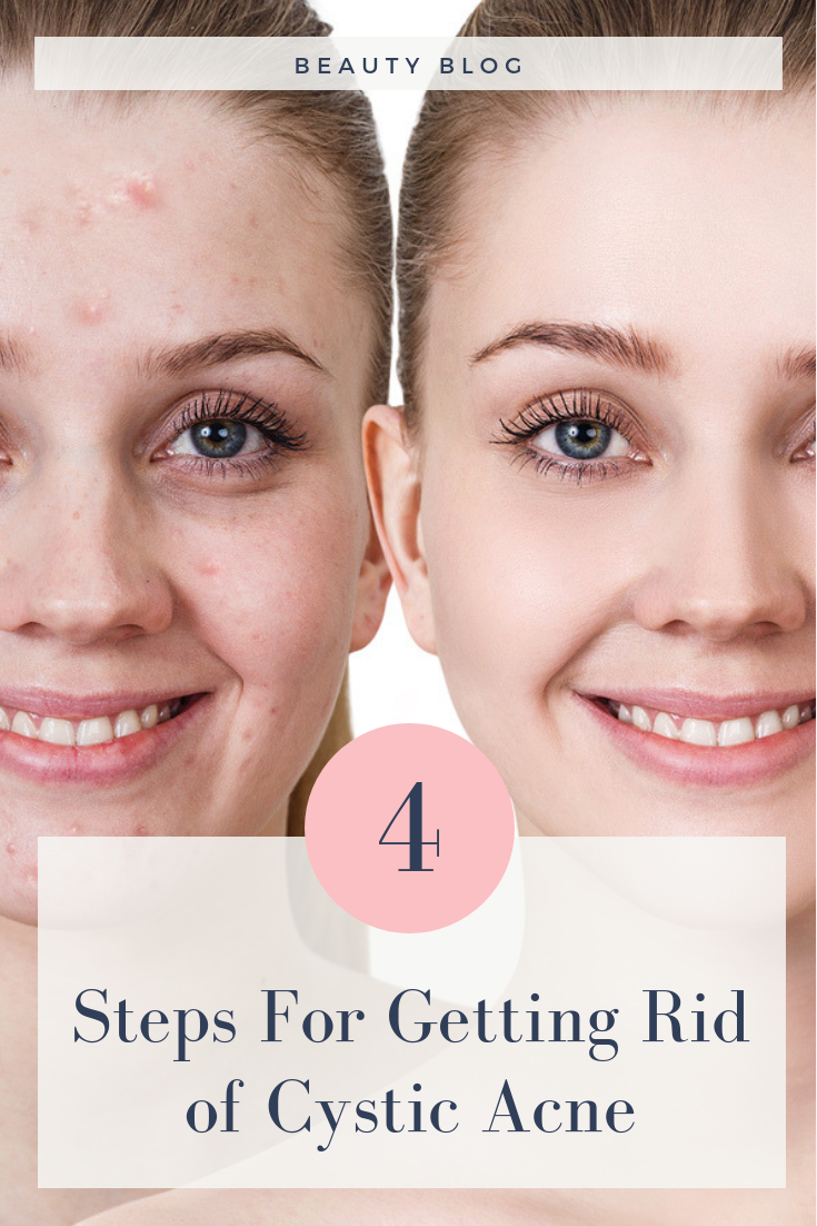 Cystic Acne 4 Steps To Clear Skin Biokosmetik Professional Skin Care