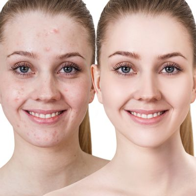 biodroga solution for cystic acne