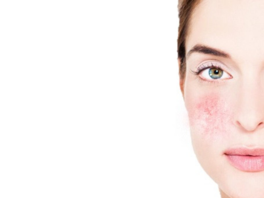 How Estheticians Can Treat Sensitive Skin